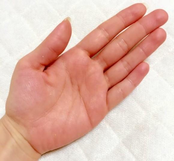 手汗が多い人の手